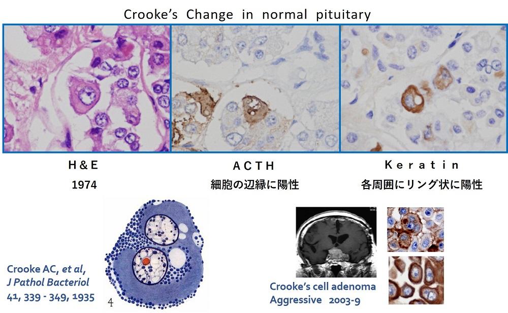 http://osamura-newpath.com/Crooke%20Change%20in%20normal%20pituitary.jpg