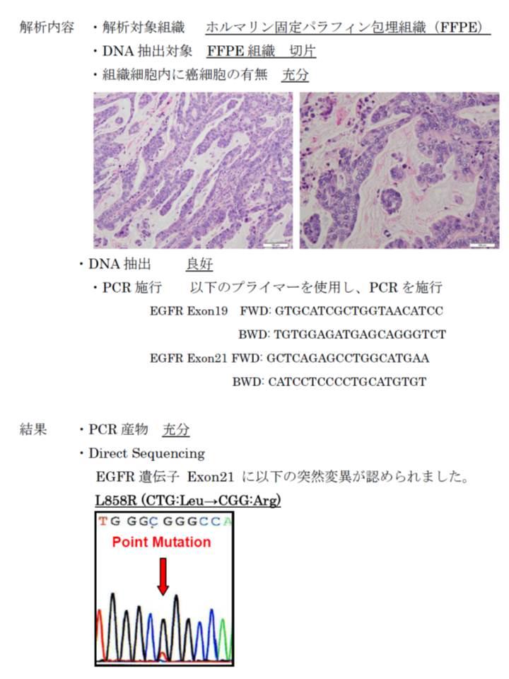 http://osamura-newpath.com/EGFR%20mutation%E5%A0%B1%E5%91%8A%E6%9B%B8.jpg