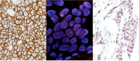 HER2 IHC 3+ HER2 FISH amplification HER2 DISH amplification.jpgのサムネール画像のサムネール画像のサムネール画像のサムネール画像のサムネール画像のサムネール画像