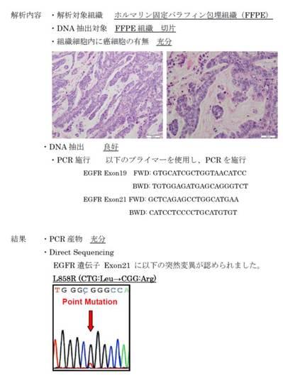 EGFR mutation報告書.jpg